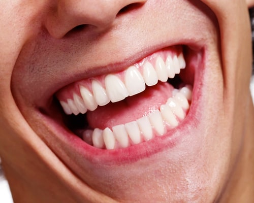 Stunning Smile With No Tooth Reduction Veneers Vancouver