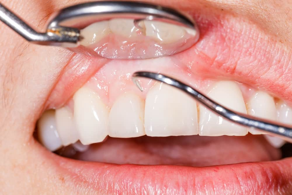 Gum Disease Prevention Tips