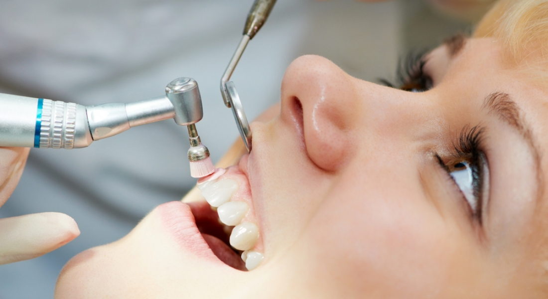 What Happens During a Teeth Cleaning session: