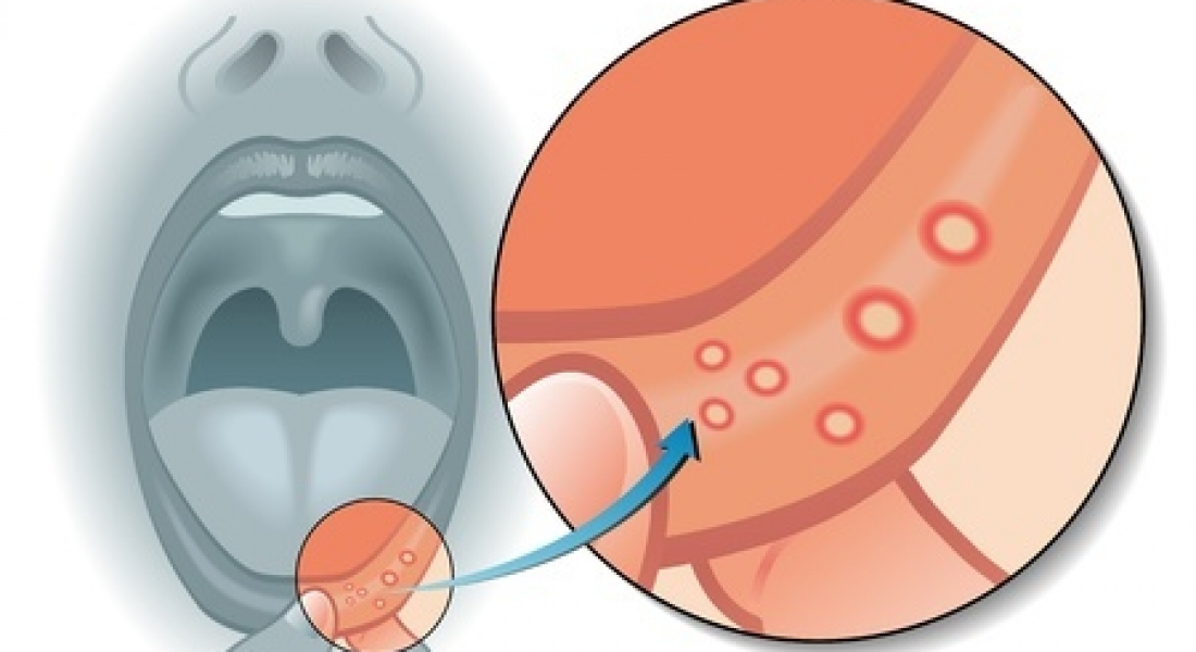 Soft Laser Therapy in the Treatment of Mouth Ulcers