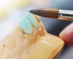 Porcelain vs. Composite Veneers