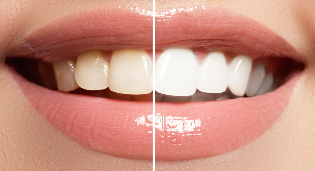 In Office Vs. At-Home Teeth Whitening