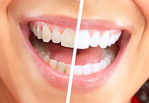 Teeth Whitening Vancouver Bc Cosmetic Dentistry